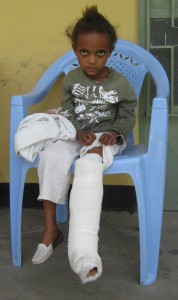 young-HIV-positive-girl-in-ethiopia-sits-in-a-chair-with-a-cast-on-her-leg